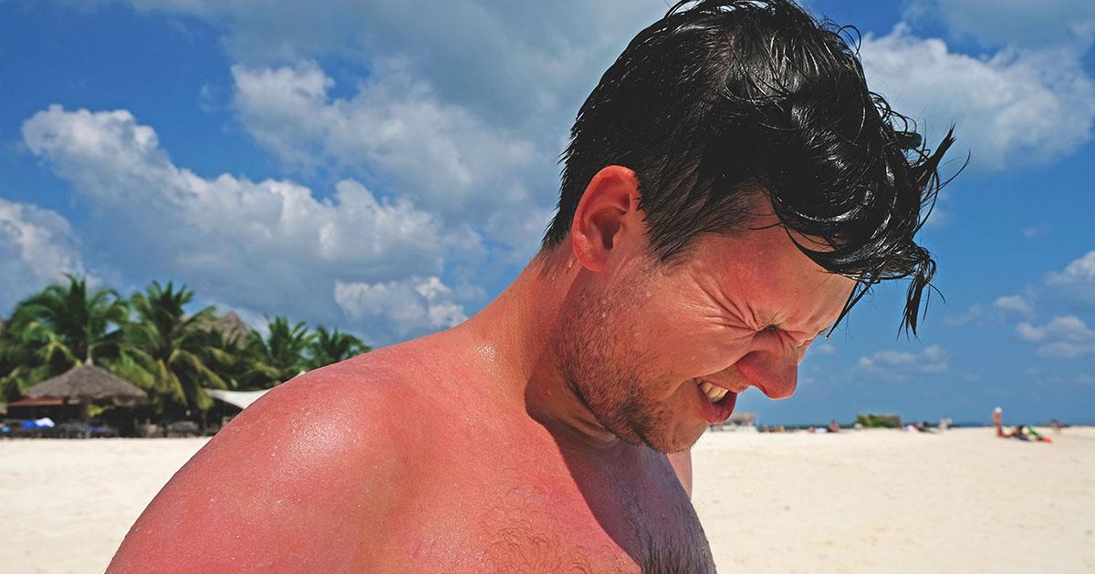 treat sunburn